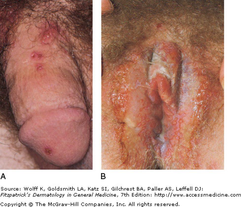 CURE TO HERPES:oscardilan68@yahoo.com